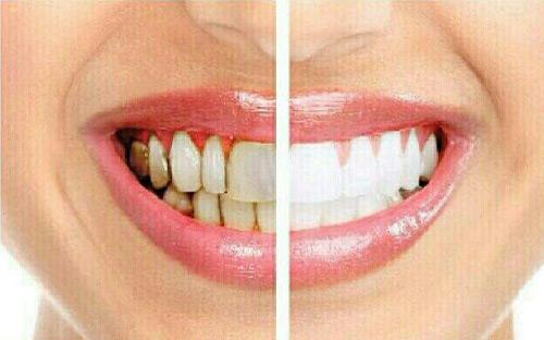 کاربرد-پربوات-در-سفید-کننده-دندان